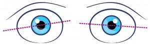 disallineamento-occhi