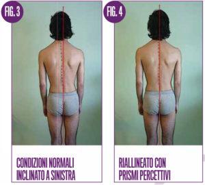 Dispercezione e problemi posturali