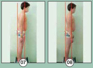 Esempio problema posturale e soluzione