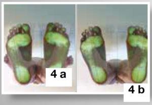 Terapia falso piede cavo