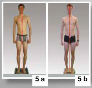 Intervento riduzione frenulo linguale e postura