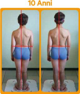 Riallineamento postura con lenti prismatiche