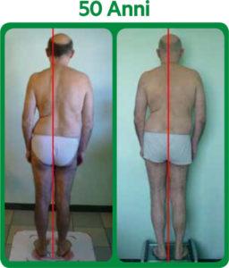 Riallineamento sistema posturale