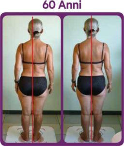 Terapia problemi posturali